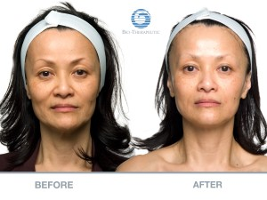 Non Surgical Facelift Microcurrent Facial Aimee Wells